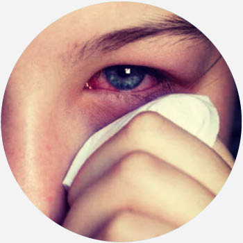 What Does pink eye Mean? | Tech & Science by Dictionary com